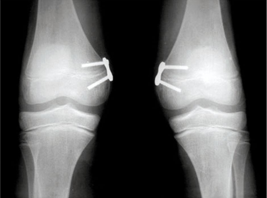 valgismo_radiografia